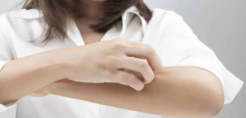 mulher coçando a pele do braço